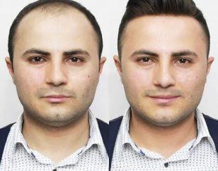 ترمیم و پروتز مو شیراز فیکس