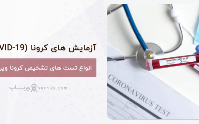 انواع آزمایش و تست تشخیص کرونا ویروس